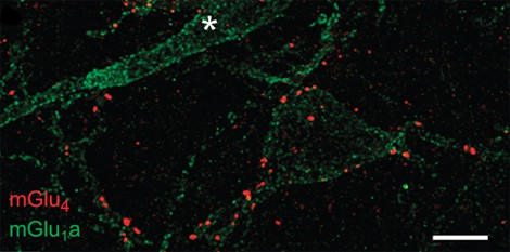 © Zussy et al., 2016  View of synapses in the amygdala of a mouse, obtained usin